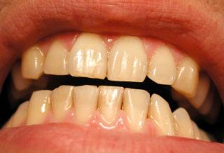 Why My Yellow Teeth Won't Ever Whiten